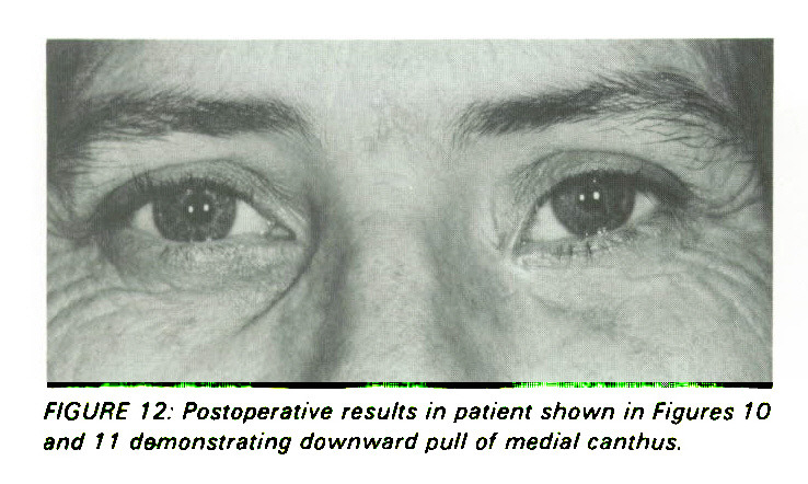 Spontaneous Repair of the Medial Canthus After Removal of Basal Cell ...