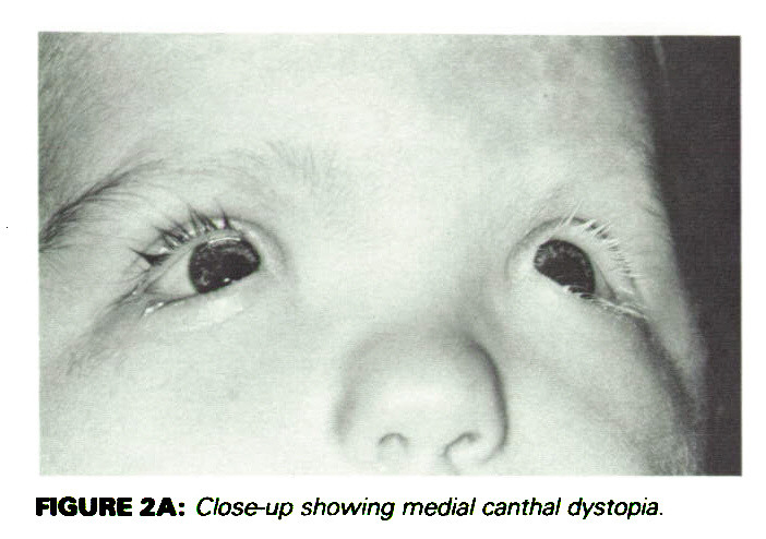 Repair of Medial Canthal Dystopia