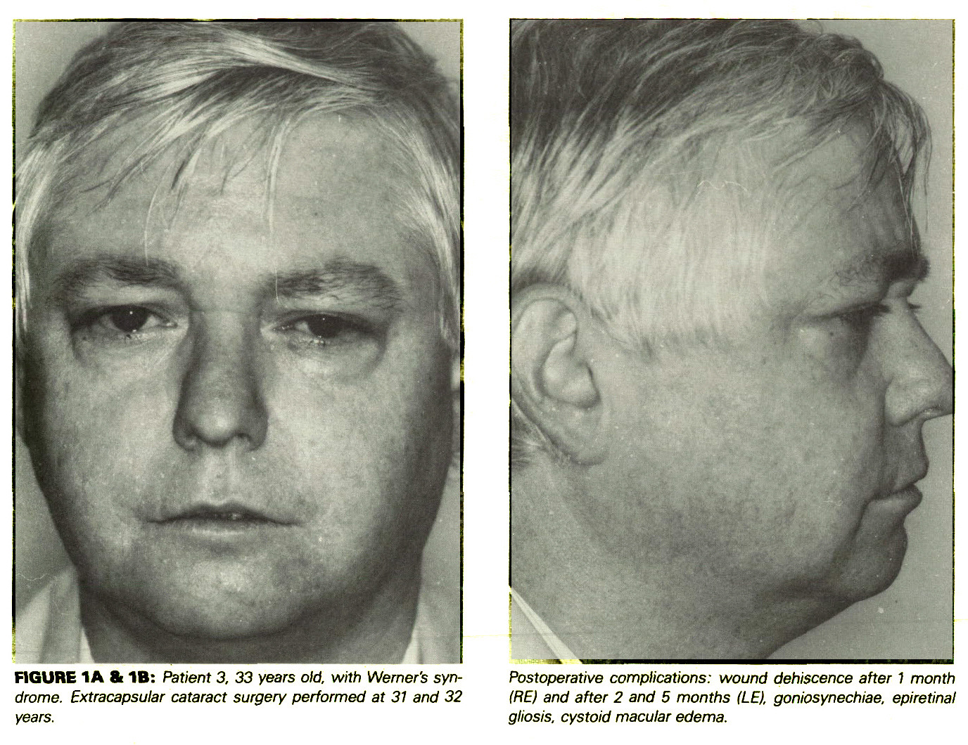 Ophthalmic Surgical Complications in Werner's Syndrome ...