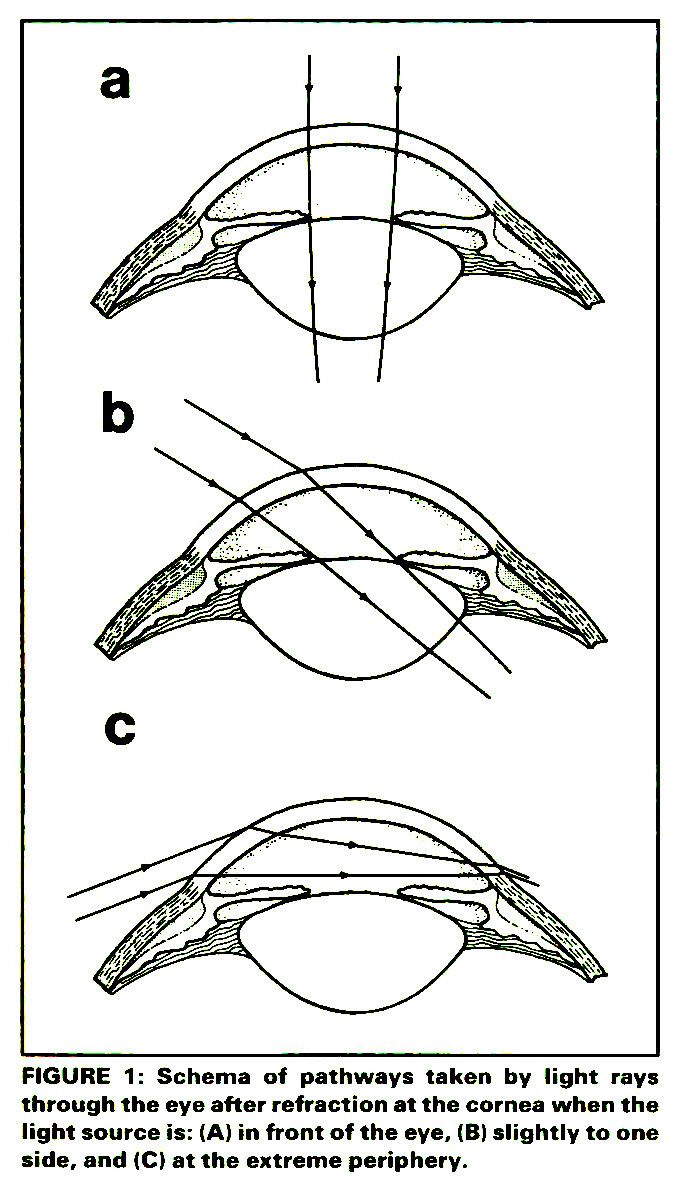 FIGURE 1: Schema of pathways taken by light rays through the eye after  refraction at