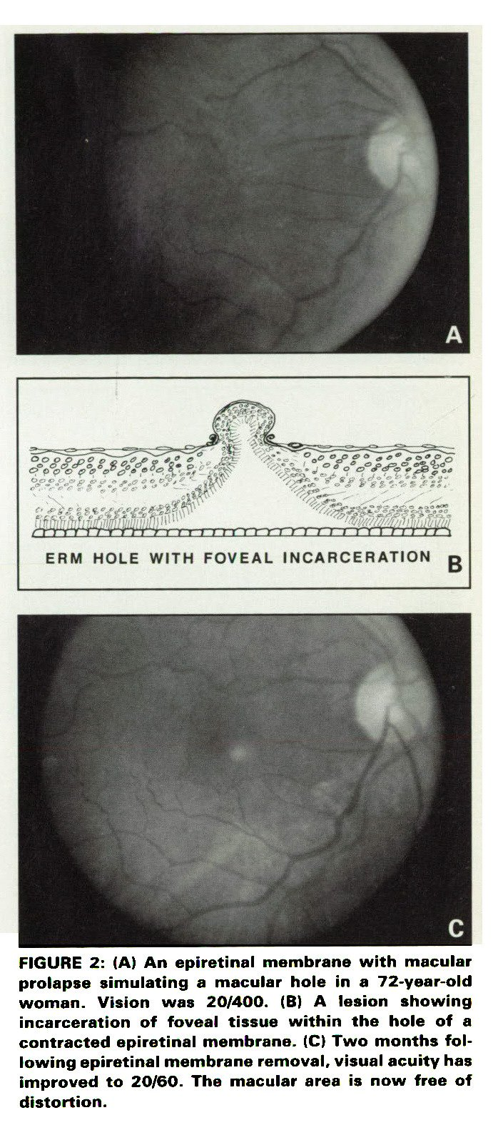 FIGURE 2 A An Epiretinal Membrane With Macular Prolapse Simulating Hole