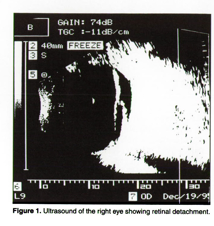 Figure 1. Ultrasound of the right eye showing retinal detachment.