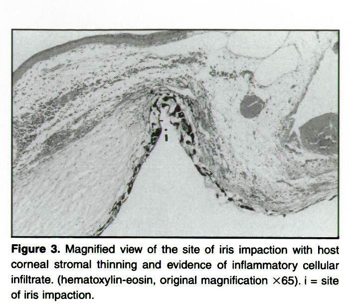 Figure 3. Magnified view of the site of iris impaction with host corneal stromal thinning and evidence of inflammatory cellular infiltrate, (hematoxylin-eosin, original magnification ×65). i = site of iris impaction.