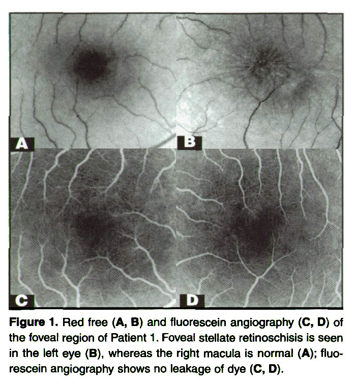 Figure 1. Red free (A, B) and fluorescein angiography (C, D) of the foveal region of Patient 1 . Foveal stellate retinoschisis is seen in the left eye (B), whereas the right macula is normal (A); fluorescein angiography shows no leakage of dye (C, D).