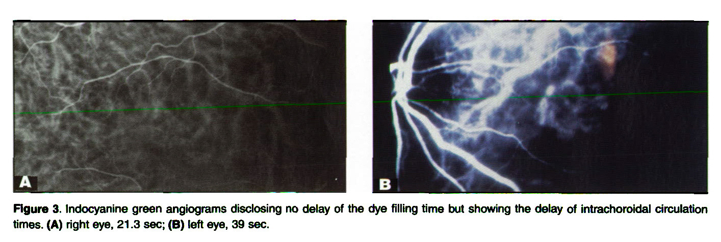 Figure 3. lndocyanine green angiograms disclosing no delay of the dye filling time but showing the delay of intrachoroidal circulation times. (A) right eye, 21 .3 sec; (B) left eye, 39 sec.