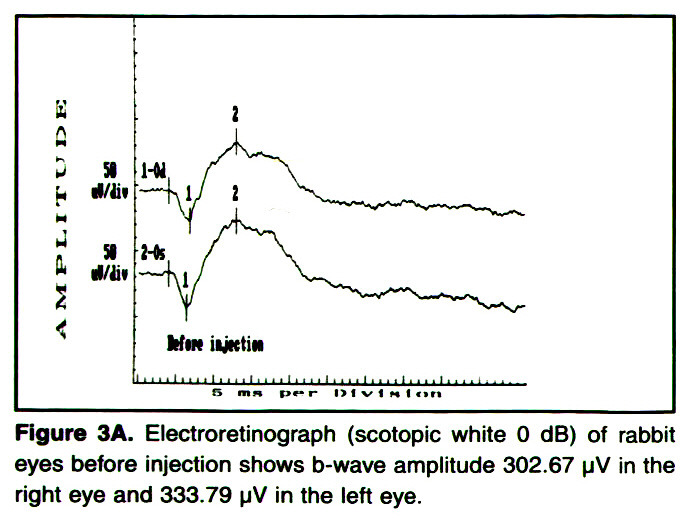 Figure 3A. Electroretinograph (scotopic white O dB} of rabbit eyes before injection shows b-wave amplitude 302.67 µ? in the right eye and 333.79 µV in the left eye.