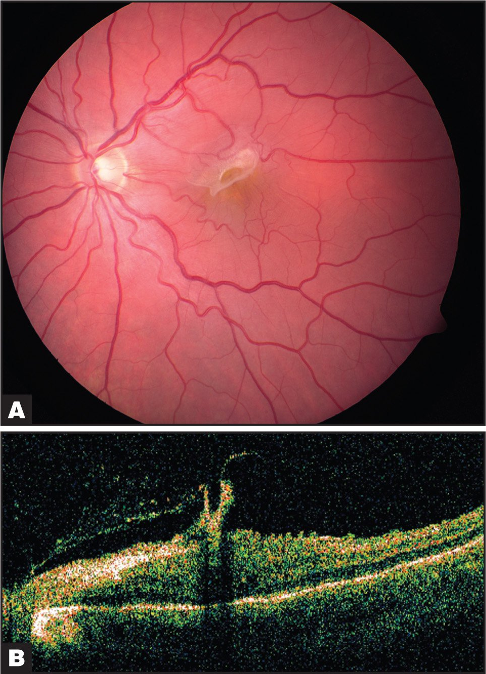(A) Color Fundus Photograph of the Left Eye of a 15-Year-Old Boy 1 Month Following Pars Plana Vitrectomy Showing Residual Vitreous Cortex and the Posterior Face of the Bursa Macularis. Vitreous Is Attached to the Macula Superiorly and Detached from the Macula in the Inferotemporal Area. Visual Acuity at This Time Was 20/200. (B) Corresponding Horizontal 6-mm Optical Coherence Tomography Scan Showing Residual Vitreomacular Attachment and Macular Edema.