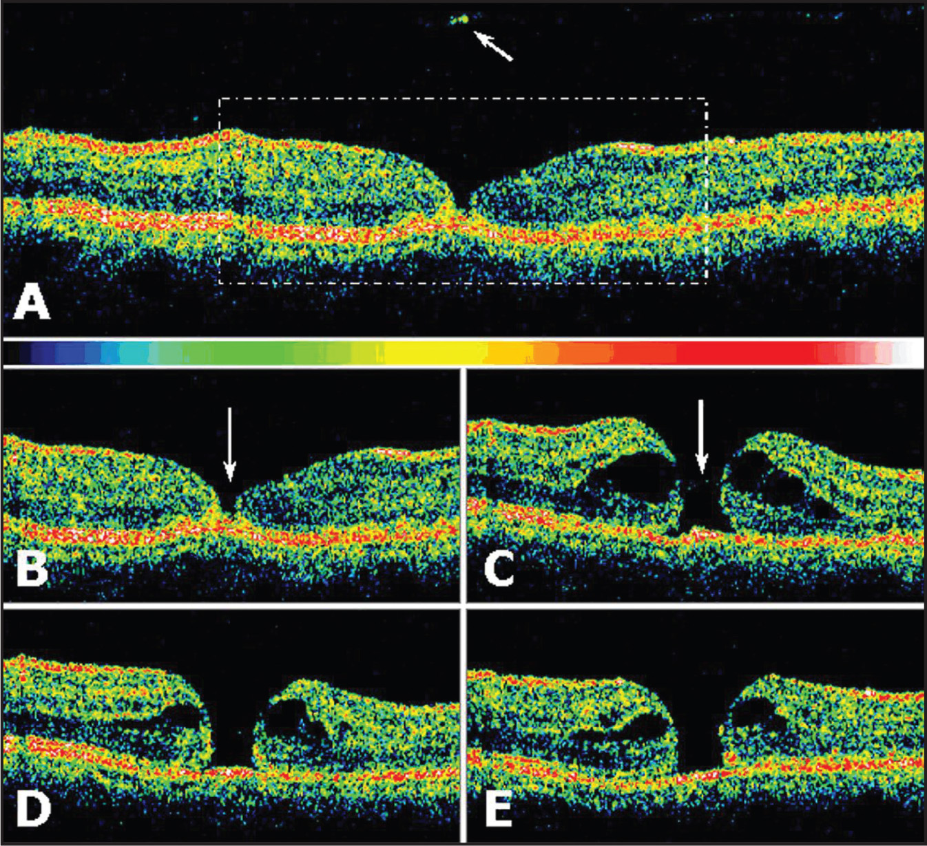 Third Generation Optical Coherence Tomography Scans of the Right Eye of a 27-Year-Old Man with Traumatic Lamellar Macular Hole (case 2). (A, B) at Presentation, a Horizontal (6 mm in Length) Scan Revealed Complete Detachment of the Posterior Hyaloid in the Macular Region. a Hyperreflective Structure Corresponding to the Pseudo-Operculum Was Seen in the Plane of the Detached Posterior Hyaloid over the Foveal Region (arrow). a Tiny Break Within the Inner Retina with Abnormal Reflective Signals from the Underlyingphotoreceptor Layerat the Center of the Fovea and Preserved Reflectivity from Perifoveal Retinal Layers Was Seen. (C) Six Weeks Later, a Scan Revealed a Full-Thickness Macular Hole (arrow) with Perifoveal Cystic Spaces at the Level of the Outer Plexiform Layer and Focal Attenuation of the Outer Highly Reflective Layer Corresponding to the Junction of the Inner and Outer Photoreceptor Segments. Subsequent Scans Performed (D) 10 Weeks and (E) 16 Weeks After Presentation Showed Some Decrease in Perifoveal Fluid Accumulation and Outer Retina Edema and Persistence of a Full-Thickness Macular Hole of Approximately 261 μm.