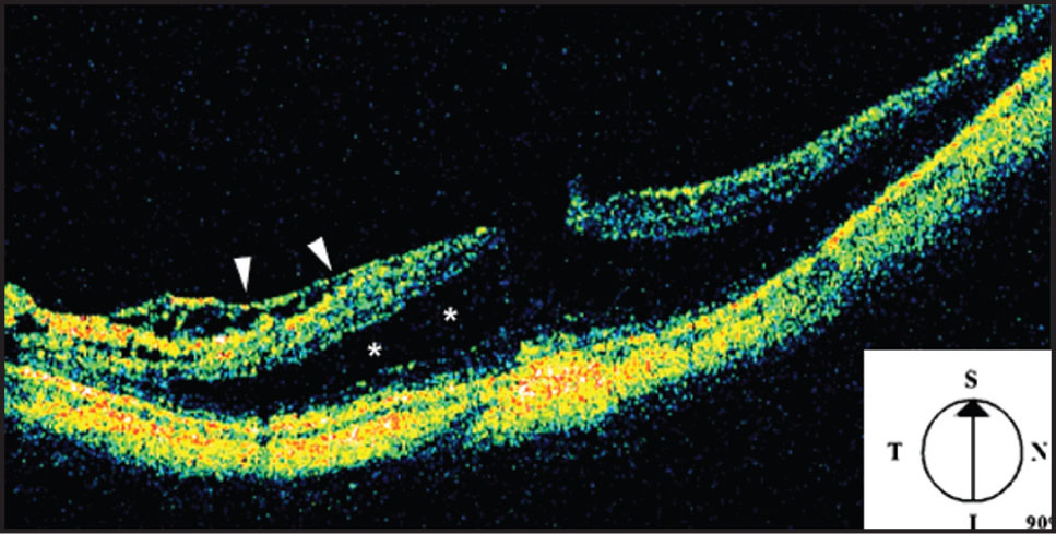 Stratus OCT of the Right Eye 3 Years Before Surgery Showed Preretinal Tissue (arrowheads) with Marked Distortion of Inner Retinal Structures and Cystic Schisis-Like Change (asterisks) in the Deep Layers of the Retina.