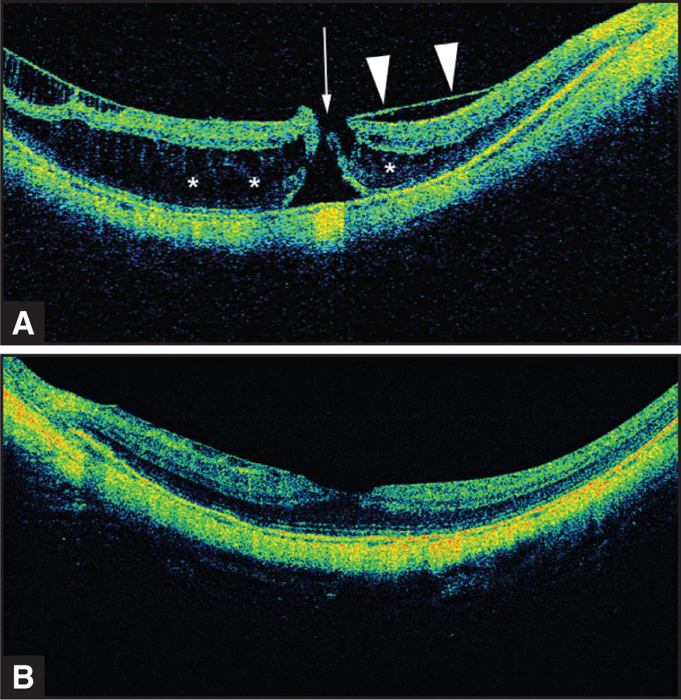 (A) SD-OCT 1 Month Preoperatively Shows the Preretinal Layers More Prominently (arrowheads) with More Distinct Distortion of the Deep Retinal Layers (outer Nuclear Layer; Asterisks) and a Probable FTMH (arrow). (B) In the Left Eye, the Preretinal Layer and the Deep Retinal Layer Stretching Are More Distinct than Was Evident with the Stratus OCT.