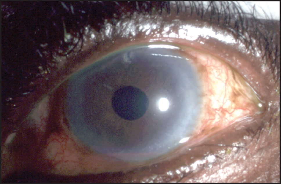 This Anterior Segment Photograph of the Left Eye Demonstrates a Small Layered Hyphema Inferiorly.
