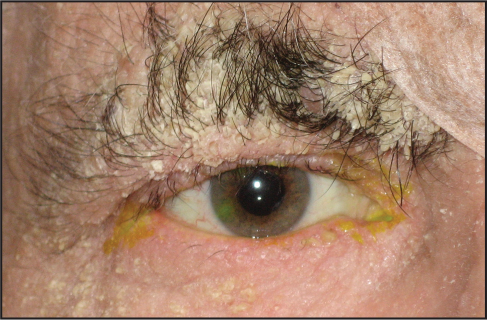External Photograph After Uncomplicated Right-Sided Cataract Extraction Demonstrating Diffuse Hyperkeratotic Plaques Involving the Patient's Eyelids and Eyebrows.