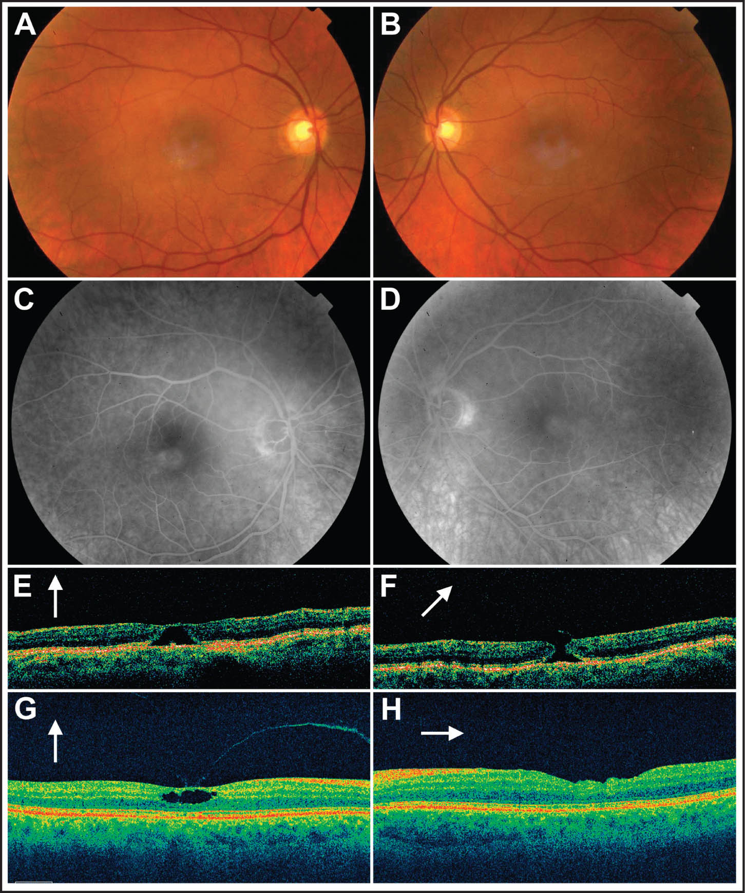 A 64-Year-Old Man with a History of Idiopathic Macular Telangiectasia Type 2 Complained of Distorted and Decreased Vision in His Left Eye for 6 Weeks. Fundus Photographs Show Grayish Opacification Around the Fovea in the Right (A) and Left (B) Eye. Intraretinal Staining in the Late Phases of Fluorescein Angiogram Is Seen in the Right (C) and the Left (D) Eye. (E) The Stratus OCT III (Carl Zeiss Meditec, Dublin, CA) Showed a Large Cystoid Cavitation Under the Intact Internal Limiting Membrane in the Right Eye. (F) Stratus OCT Taken Preoperatively Shows a Small Full-Thickness Macular Hole in the Left Eye. (G) Spectral-Domain Cirrus OCT of the Right Eye, Taken a Year Later, Shows a Large Foveal Cavitation. (H) Spectral-Domain Cirrus OCT Through the Fovea, Taken 1 Year After the Surgery, Shows Macular Hole Closure in the Left Eye. External Limiting Membrane and Inner–Outer Segment Junction of Photoreceptors Are Preserved.