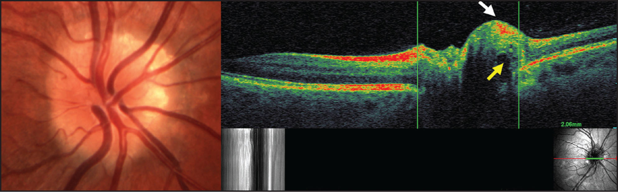 Optical Coherence Tomography/scanning Laser Ophthalmoscopy (OCT/SLO) of Optic Nerve Head Drusen. (Left) Right Optic Nerve Photograph Demonstrating Superonasal/nasal Visible Drusen that Obscure the Disc Margin. (Right) SLO-Guided OCT B-Scan Through the Center of the Optic Disc Cup and Peripheral Nasal Drusen, Avoiding Traversing Blood Vessels at the Margin (see Grayscale SLO Image, Lower Right). Disc Diameter Is Estimated by Vertical Calipers Placed at the Retinal Pigment Epithelium (RPE) Termination Site. A Corresponding Horizontal Green Line Is Superimposed over the SLO En Face Image, Demonstrating a Larger Measured Disc Size on the Transverse OCT Scan than Appreciated by the SLO Image. Note also the Shallowed Optic Nerve Cup, Hyperreflectivity of the Visible Drusen with Nerve Fiber Layer Displacement (white Arrow), Underlying Posterior Shadowing (yellow Arrow), and RPE Disorganization.