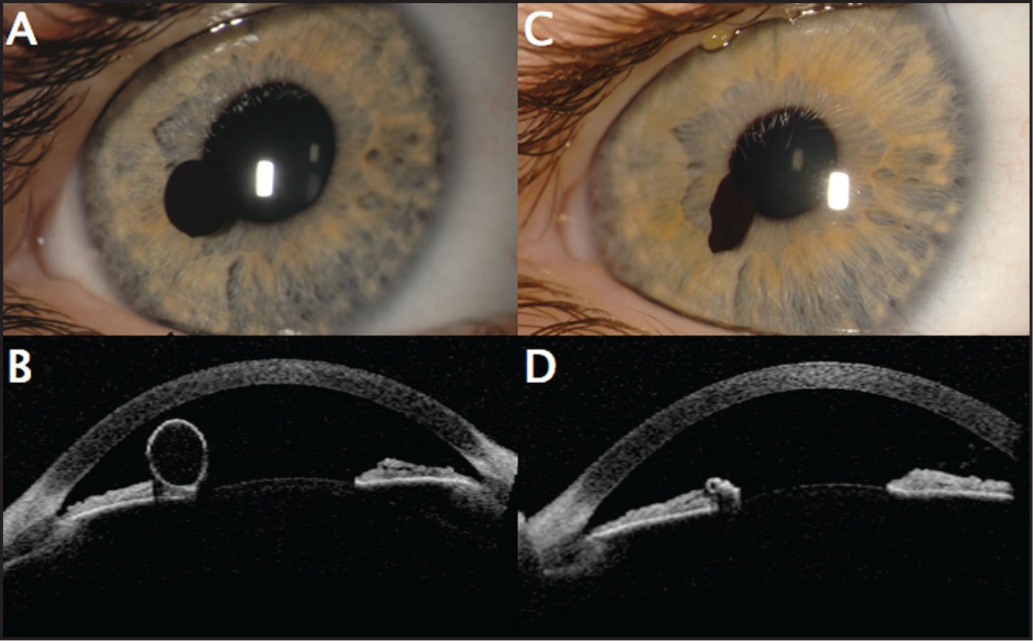 A 3-Year-Old Girl with Black, Pupillary Margin Iris Pigment Epithelial Cyst. (A) At Presentation, the Round, Inflated Black Cyst at the Pupillary Margin Overhangs the Iris Stroma. (B) Anterior-Segment Optical Coherence Tomography (AS-OCT) of Figure a Displays the Thin-Walled, Inflated Cyst at the Pupillary Margin, Arising from a Strand of Iris Pigment Epithelial Cyst. (C) Three Months Later, the Cyst Is Deflated with a Collapsed Appearance. (D) AS-OCT of Figure C Displays the Irregular, Collapsed Cyst with Abrupt Optical Shadowing.