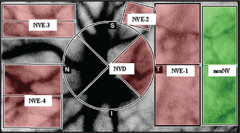 Mean Blur Rate Was Measured in the Previously Confirmed Areas According to Fluorescein Angiography in an Average of the Four Areas of Neovascularization Elsewhere (NVE-1 to NVE-4) and in One Area of Neovascularization of the Disc (NVD) and One Area Without Neovascularization (nonNV).