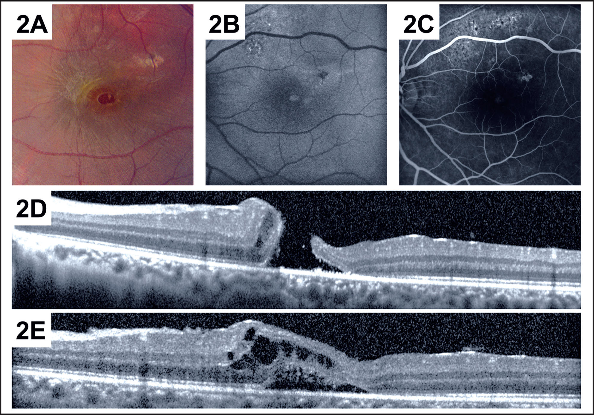 Preoperative Images of the Left Macula. (A) Fundus Photography Shows a Full-Thickness Macular Hole Involving the Central Macula. (B) Fundus Autofluorescence Shows Increased Autofluorescence Centrally and Multifocal Abnormalities Superiorly and Temporally. (C) Fluorescein Angiography in the Venous Phase Shows Mild Central Hyperfluorescence and Patchy Superior Irregular Hyperfluorescence at the Level of the Retinal Pigment Epithelium. Spectral-Domain Optical Coherence Tomography (spectralis; Heidelberg Engineering, Heidelberg, Germany) Shows a Full-Thickness Macular Hole (D) and Associated Subretinal and Intraretinal Fluid (E).