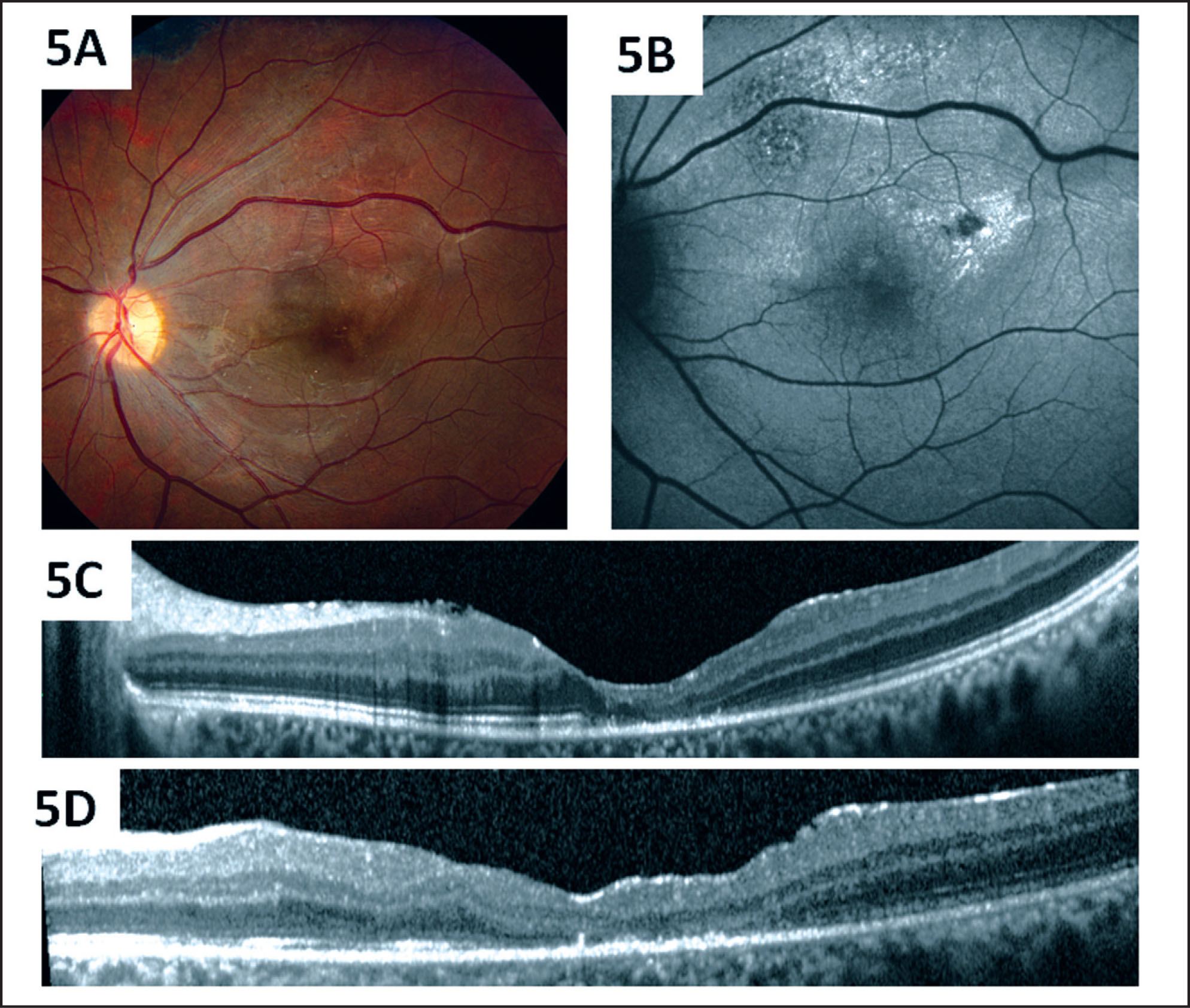 Postoperative Images of the Left Macula 1 Month After Surgery. (A) Fundus Photography Shows Closure of the Full-Thickness Macular Hole and Areas of Pigmentary Changes. (B) Fundus Autofluorescence Shows Normal Autofluorescence Centrally and Persistent Abnormalities Superiorly and Temporally. (C) Spectral-Domain Optical Coherence Tomography (SD-OCT) (Spectralis; Heidelberg Engineering, Heidelberg, Germany) of the Fovea Shows Full-Thickness Macular Hole Closure with Loss of the Normal Lamellar Retinal Architecture Centrally and Loss of Reflectivity Along the Outer Retina Along the Reflective Band Corresponding to the Photoreceptor Outer Segment/inner Segment Junction. (D) SD-OCT Just Superior to the Fovea Shows an Irregular Foveal Contour and Disruption of the Outer Retinal Architecture.