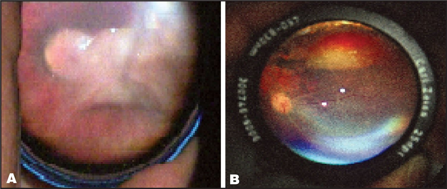 Posterior Pole of the Right Eye with Stage-5 ROP (a), and the Left Eye with Limited Regression of ROP (b).