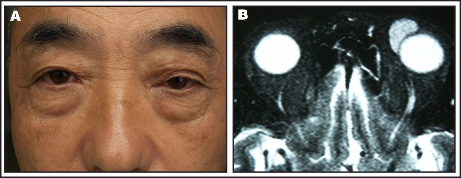 External Photograph and Magnetic Resonance Imaging (MRI). (A) An External Photograph Demonstrates the Mass in the Upper Inner Quadrant of the Anterior Left Orbit. (B) MRI (T2-Weighted Image) Revealed a Homogeneous Cystic Lesion in the Anterior Superonasal Orbit with a Distinct Margin. No Obvious Deformity of the Left Eyeball Was Observed, in Spite of the Mass Being Largely Attached to it.