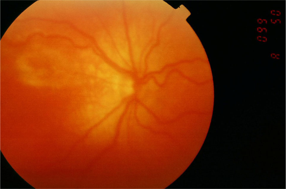 Plus Disease in the Right Eye Shows Tortuous Retinal Arterioles and Engorged Veins Close to the Optic Disc and Posterior Pole.