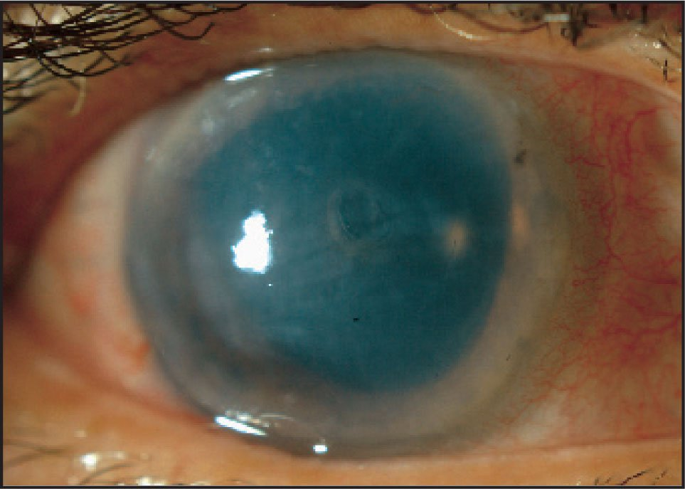 Slit Lamp Biomicroscopy Revealed Significant Corneal Clouding and Fixed-Dilated Pupil Superiorly.