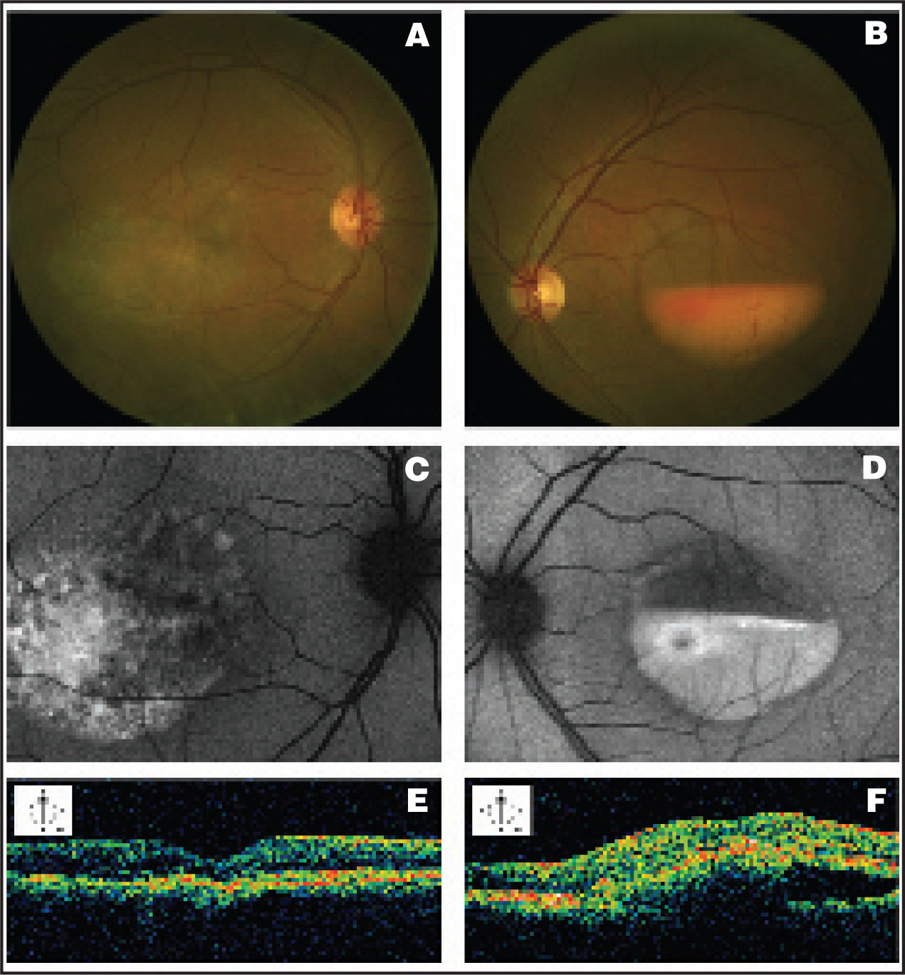 (A) Color Fundus Photographs Show the Retinal Pigment Epithelium (RPE) Changes Associated with a Large Inhomogeneous Dispersion of Vitelliform Material at the Macula of the Right Eye (RE), and (B) the Large Horizontal Sedimentation of Vitelliform Material at the Macula of the Left Eye (LE). (C and D) The Lipofuscinic Nature of the Macular Lesions Is Confirmed by Fundus Autofluorescence. (E) Optical Coherence Tomography Scan (OCT) Reveals in the Macular Region of the RE the Apparent Residual Material in the Center of the Lesion as a Hypereflective Deposit Stuck on the Outer Hypereflective Layer Associated with Variable Photoreceptors Layer/RPE Alterations and Atrophy (F) in the LE, Linear Vertical OCT Scan Shows, in the Macular Region, on the Superior Part, an Optically Empty Zone, Comprised Between 2 Slight Hypereflective Layers, And, on the Inferior Part of the Lesion, the Sediment Material, Which Appears as a Dense Hypereflective Structure. Interestingly, OCT Scan Reveals the Abrupt Transition Between the Empty Area and the Vitelliform Material that Gravitated Inferiorly in the Subretinal Space, and the Neuro-Sensory Retina Maintaining Normal Thickness and Structure.