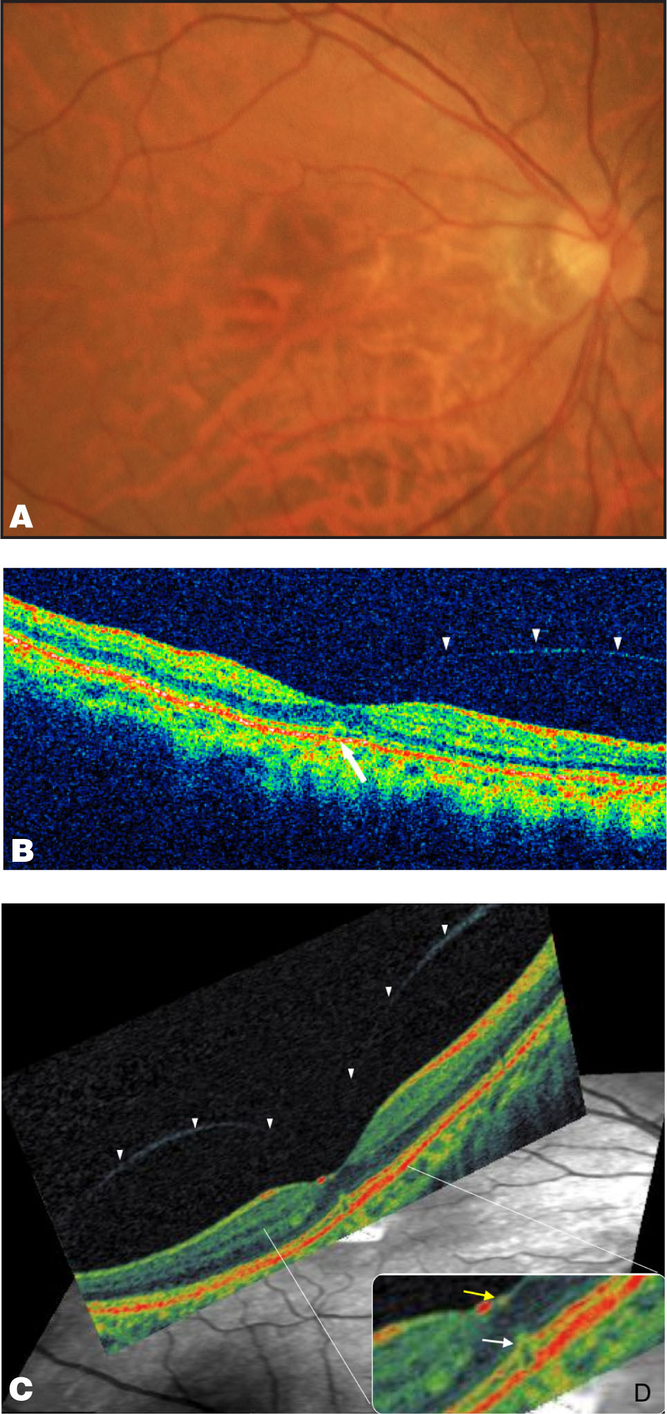 Images of the Right Eye at the First Visit. (A) A Fundus Photograph Shows a Tigroid Fundus and No Obvious Foveal Abnormalities. (B) OCT 3 Shows a Small Outer Retinal Defect (arrow) and an Intact Retinal Pigment Epithelium Layer with a Perifoveal PVD Seen as a Thin Backscattering Line (arrowheads) in a Smooth Convex Curve. (C) OCT Ophthalmoscope Shows the Reflectivity of the Perifoveal PVD, Seen as a Thin Line by the Posterior Precipitous Dip of the Posterior Hyaloid to the Fovea in a Smooth Biconvex Curve (arrowheads). (D) The Magnified Foveal Image of Figure 1C Shows that the Photoreceptor Layer Elevation (white Arrow) is Under the Hyperreflectivity of the Small Irregular Foveal Contour (yellow Arrow).