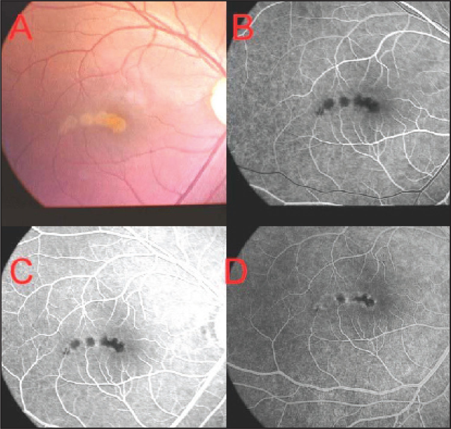 (A, B) Six Whitish Round Lesions in Macular Area Starting from Fovea and Going Inferio-Temporal. (C) Fluorescein Angiography Showed Blocked Fluorescence in the Early Phases. (D) Mild Staining of the Lesions in Later Phrases.