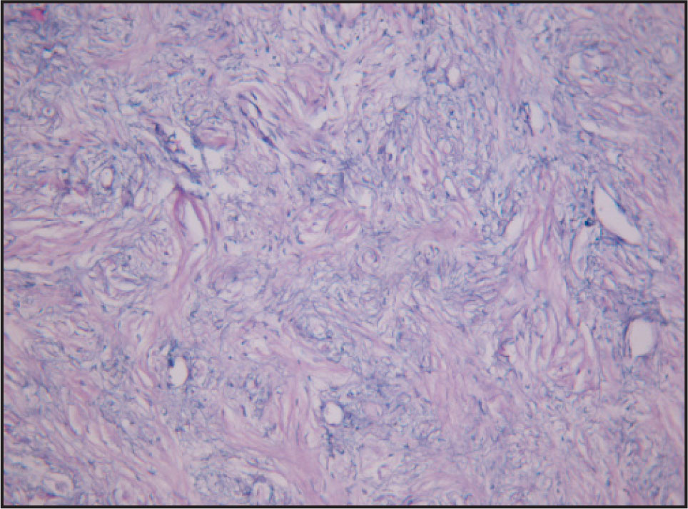 Histopathology of the Lesion Showing Proliferation of Loosely Interwoven Bundles of Spindle Shaped Cells Separated by Loose Myxomatous Tissue (hematoxylin and Eosin, × 400)
