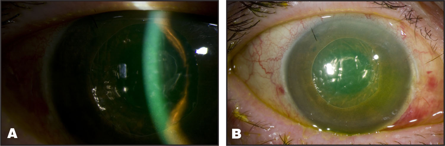 (A–B) Color Slit Lamp Photograph Right Eye Showing Narrow Angle with Air Bubble, Complete Pupillary Block, and Iris Bombé.