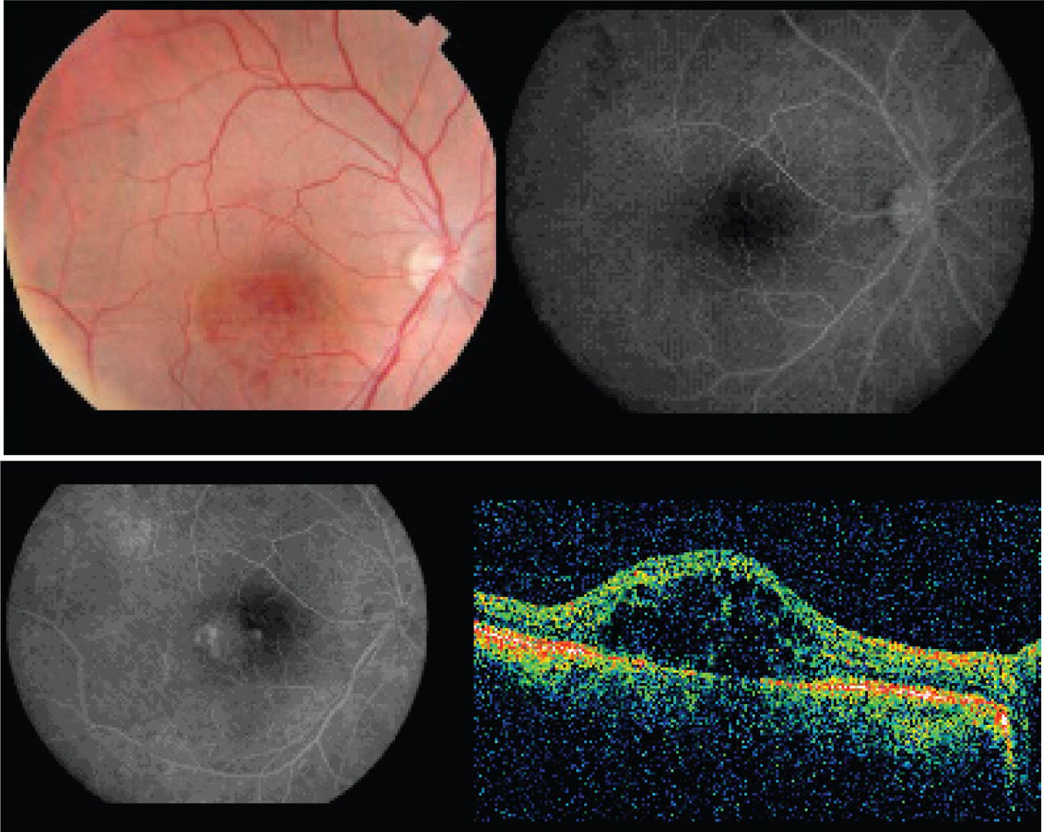 Colour Fundus Photograph, Fluorescein Angiography and OCT of the Right Eye Before Treatment. The Abnormal Vessels Show Fluorescence Capping and Leakage in the Macula. OCT Confirmed Retinal Elevation Caused by the Tumoral Tissue. Visual Acuity was 20/400.