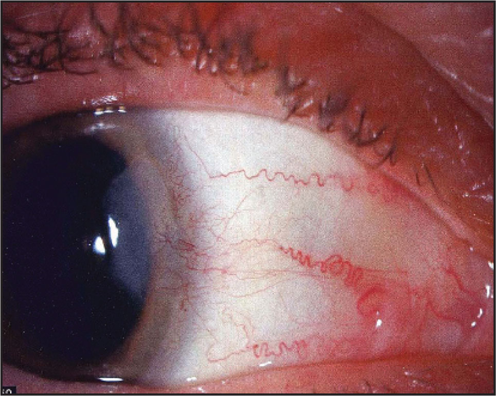 Raised Lesion with Myxoid Appearance near Nasal Limbus