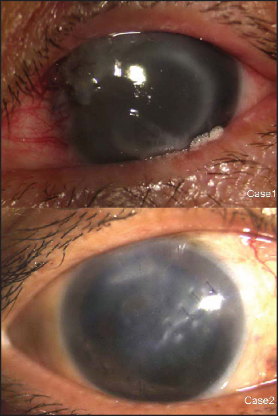 The Corneas of Both Eyes Recovered Transparence at 1 Month Postoperatively.