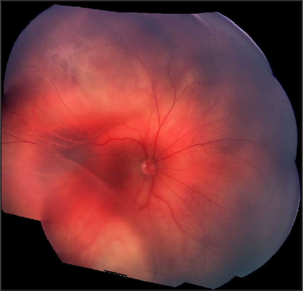 Montage Photograph of the Right Fundus at 3 Months of Age with Bullous Retinoschisis with Outer Layer Holes and Underlying Retinal Detachment Shallowly Extending Through the Macula.
