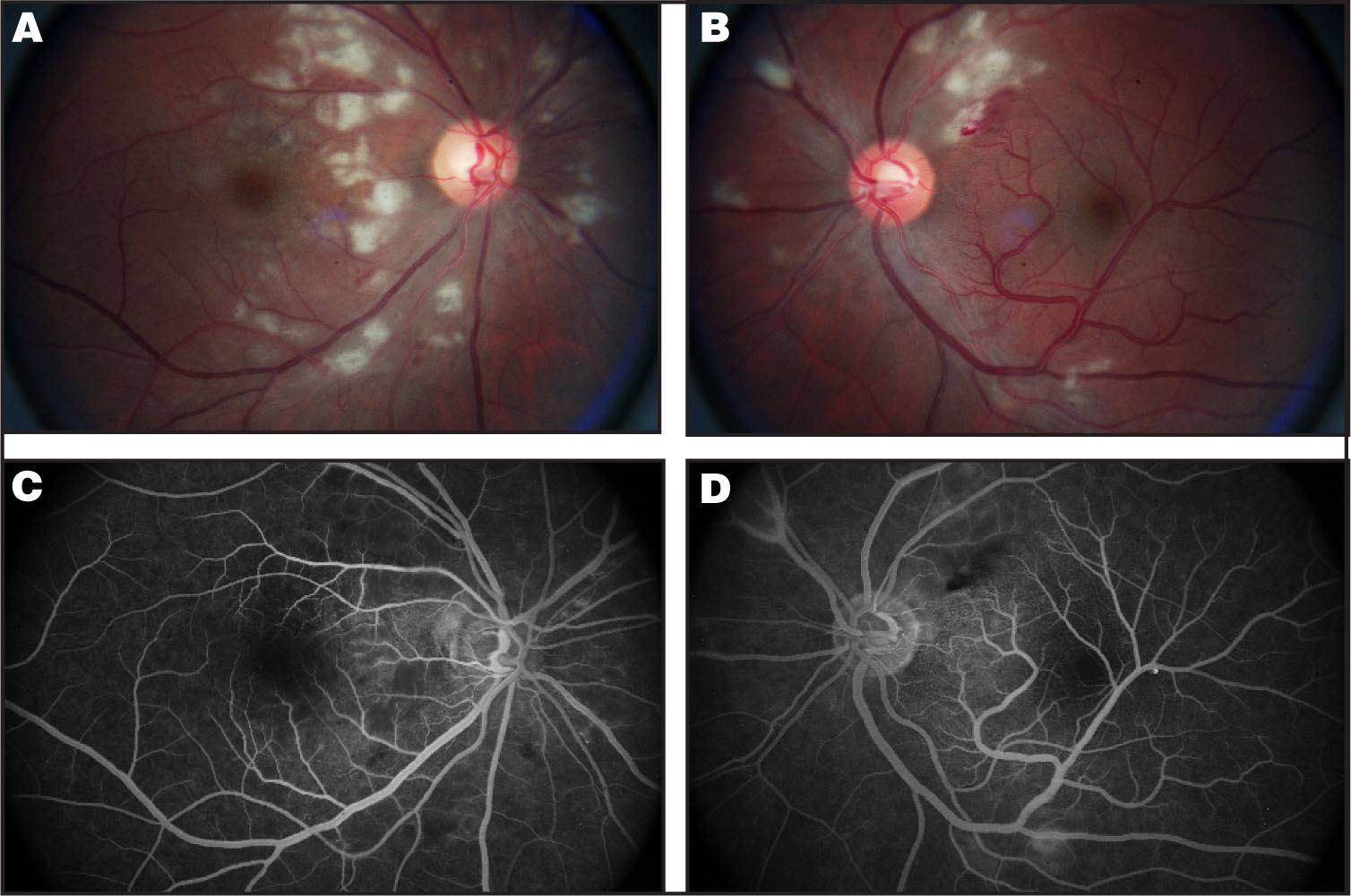 (A) Dilated Fundus Examination of the Right Eye Revealed Sharp Optic Nerve Margins, Scattered Cotton-Wool Spots in the Posterior Pole, and Significant Macular Edema. (B) Dilated Fundus Examination of the Left Eye Revealed Sharp Optic Nerve Margins, Scattered Cotton-Wool Spots in the Peripapillary Area, Flame-Shaped Hemorrhages, and an Anomalous Inferior Arcade Extending Superiorly into the Macula. (C) Mid-Phase Flourescein Angiogram of the Right Eye is showing Patchy Hypoflourescent Areas of Nonperfusion. (D) Mid-Phase Fluorescein Angiogram of the Left Eye with Blockage from the Intraretinal Hemorrhages. There is Subtle Leakage near the Clinical Locations of Cotton-Wool Spots.