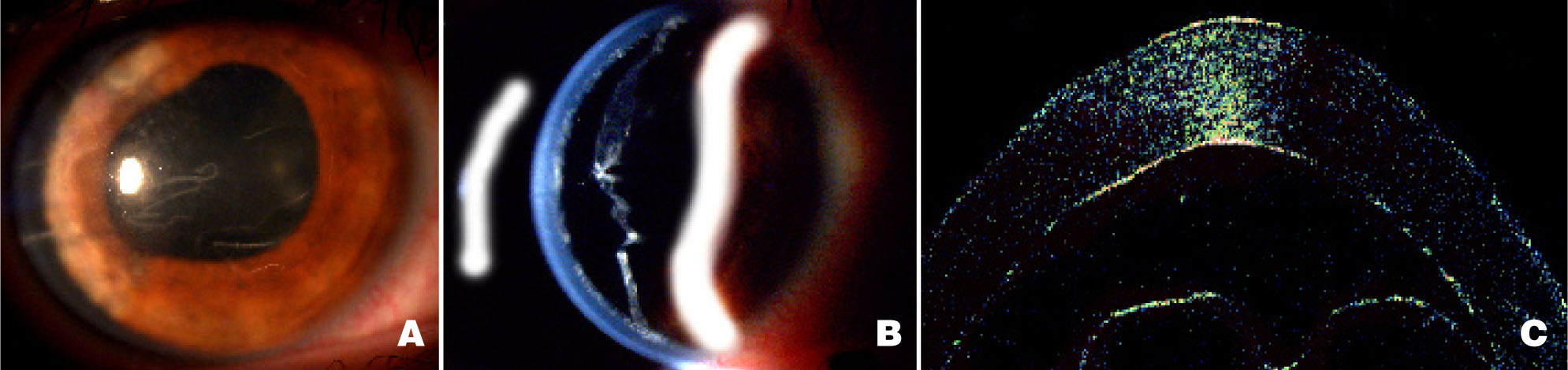 Images Delineate Extent of DMD by External, with Slit Beam, and OCT of Cornea, Respectively. (A, B) Diffuse and Slit Beam Images, Respectively, of Descemet's Membane Detachment at Time of Presentation. (C) OCT Image Confirming DM Attachment After Surgery.