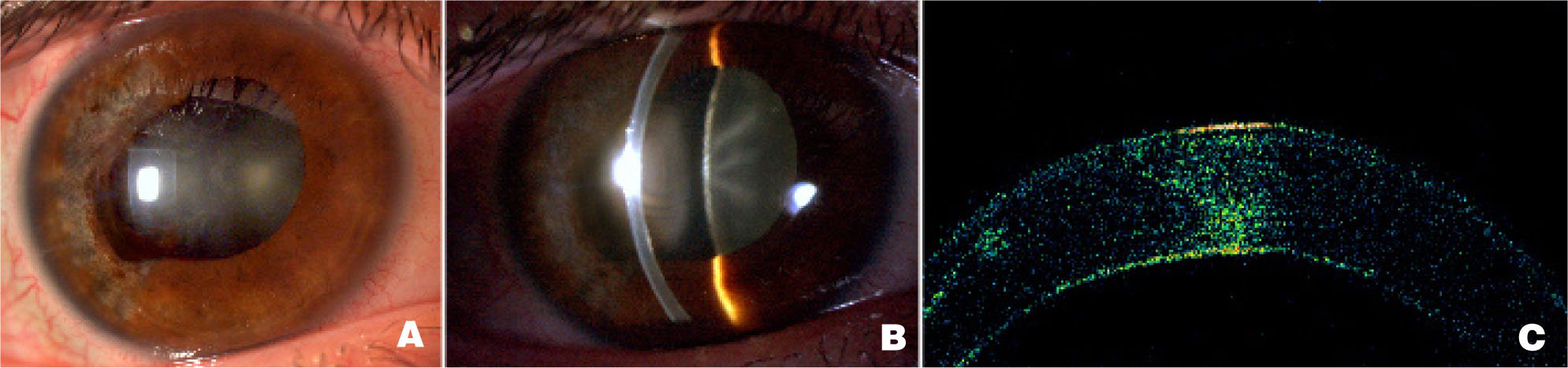 Images Show Post-Operation Images. Note No Detachment Is Seen on Slit Lamp or OCT. (A, B) Diffuse and Slit Beam Images, Respectively, of Cornea After Surgical Correction. (C) OCT Confirming DM Attachent After Surgery.