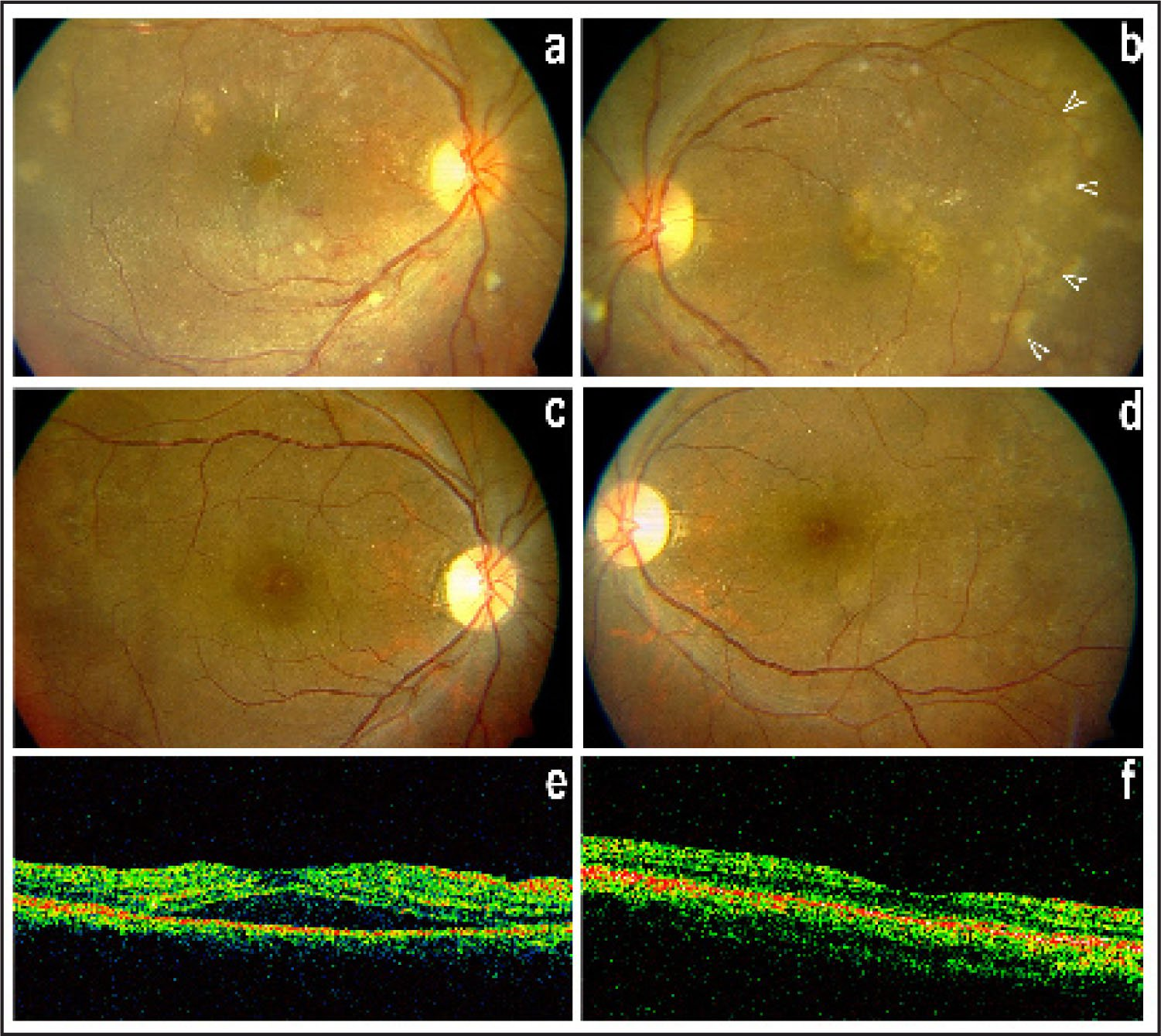 (A–B) This 25-Year-Old Woman (case 5) Developed Bilateral Grade 3 Hypertensive Retinopathy; Choroidopathy Was Manifest as Macular Detachments (more in the Right) and Focal Lesions of Retinal Pigment Epithelium (more in the Left; Arrowheads). Blood Pressure Was 200/130 mm Hg; the Patient Was not Pregnant. (C–D) A Month Later, with Stabilization of Blood Pressure, the Fundi Were Nearly Normal Except Focal Pigmentary Alterations Replacing the Acute Pale Lesions (Elschnig's Spots). (E–F) OCT Showed Complete Resolution of Macular Elevation Bilaterally, Shown Here in the Right Eye.
