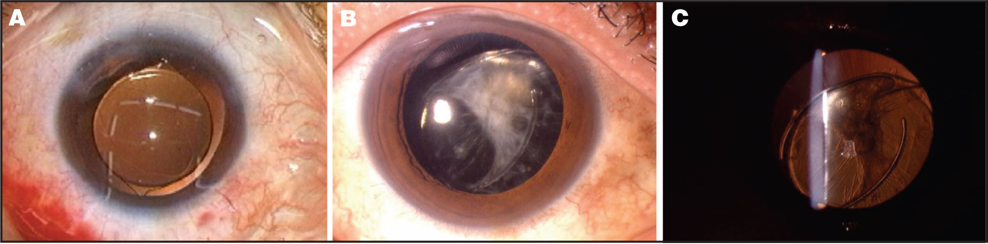 (A) the Intraocular (IOL) was Completely Inserted into the Capsular Bag, with the Edge of the Anterior Capsule Stretched Toward the IOL Haptics. (B) the Anterior Capsule Became Contracted, and the Continuous Curvilinear Capsulorrhexis Closed. (C) the Haptics of the IOL Became Detached from the Optics.