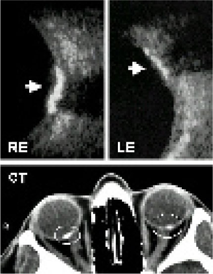B-Scan Ultrasonography Showed Highly Reflective Acoustic Plaques of Juxtapapillary Choroidal Calcification in Both Eyes (arrows). Orbital CT Axial Scan Presented Small Dense Juxtapapillary Lesions (circles) in Both Eyes, More Evident in the RE.