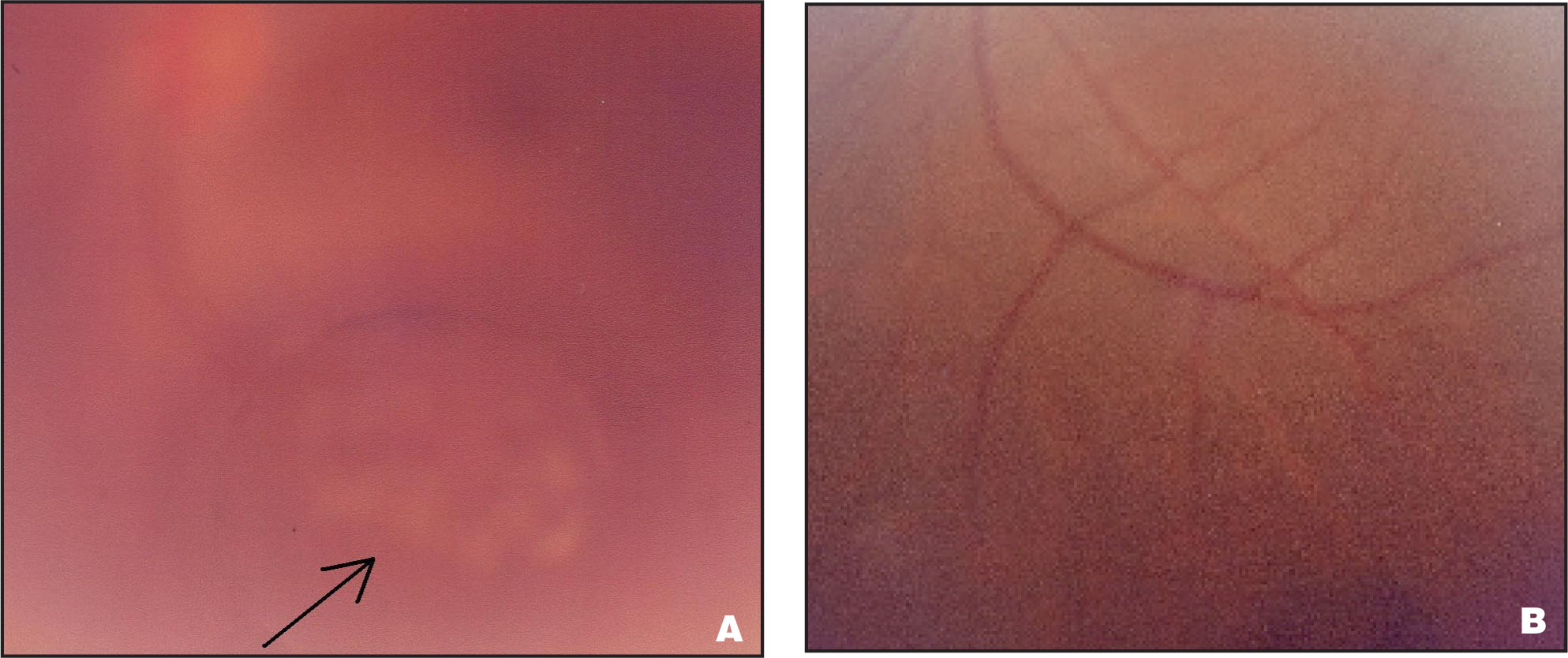 Fundus Photos (A) Immediately After Argon Laser Treatment, with Burn Spots Indicated by the Arrow, and (B) 2-Weeks After Treatment, with a Cyst Remnant Settled Inferiorly.