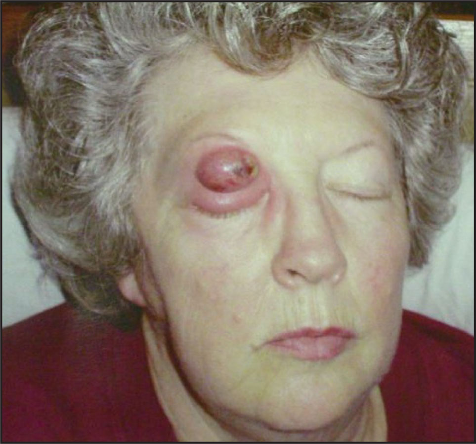 Color Photograph Showing Persistently Discharging Right Upper Lid Abscess.