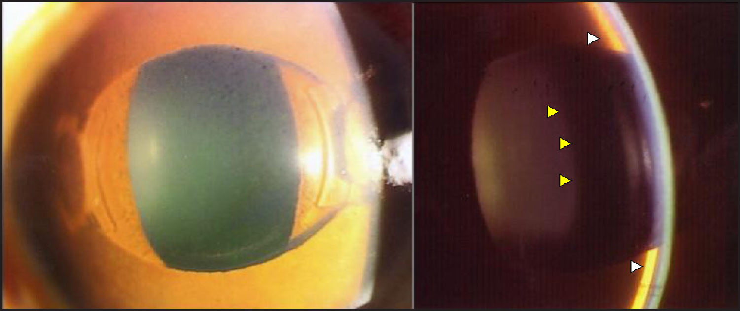 Slit-Lamp Examination Revealed Extremely Shallow Anterior Chamber, the Arcade-Shaped Pigment Dispersion on the Posterior Surface of pIOL, Pupillary Block Along the Peripheral Margin of pIOL Without Presentation of Iris-Bombe, and Closure of Peripheral Iridotomy. The Distance Between the Lens (yellow Arrow) and the Iris (white Arrow) Was Wide Because the Lens Remained in the Physiologic Position.