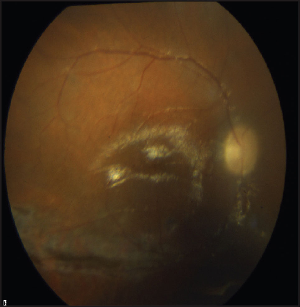 Retina Reattached After Vitrectomy and Silicone Oil Fill. There is a Retinectomy Below the Inferior Arcade.
