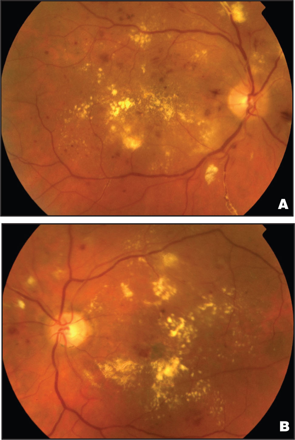 (A) Fundus Photograph of the Right Eye in Case #1, Showing Diffuse Diabetic Macular Edema and Vascular Sheathing. (B) Fundus Photograph of the Left Eye Illustrating Diffuse Diabetic Macular Edema and Cotton-Wool Spots.