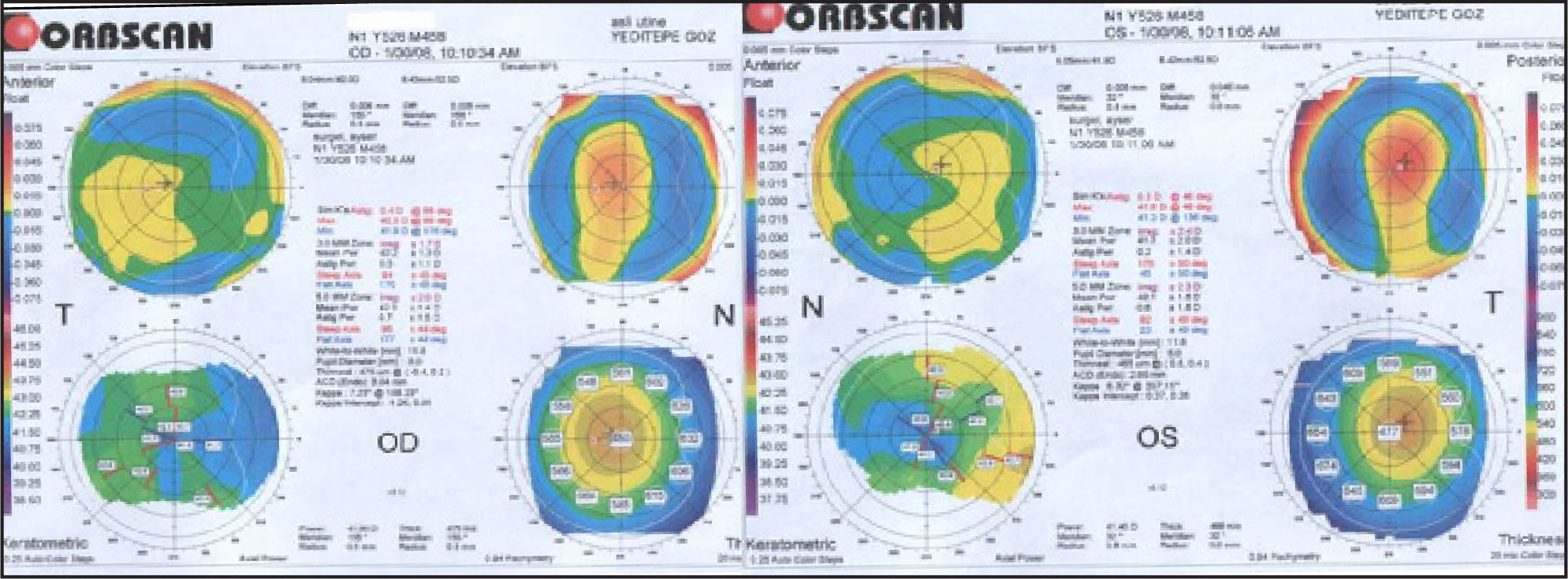 Orbscan Corneal Topography Images of the Right and Left Eyes, Respectively.