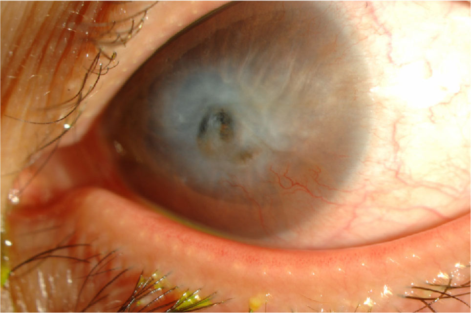 Central Corneal Ulcer with Impending Perforation and Surrounding Corneal Stromal Thinning.
