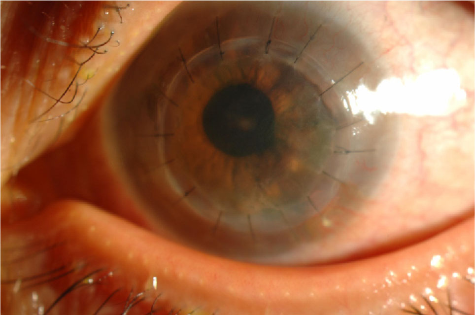 Two Weeks After Penetrating Keratoplasty was Performed.