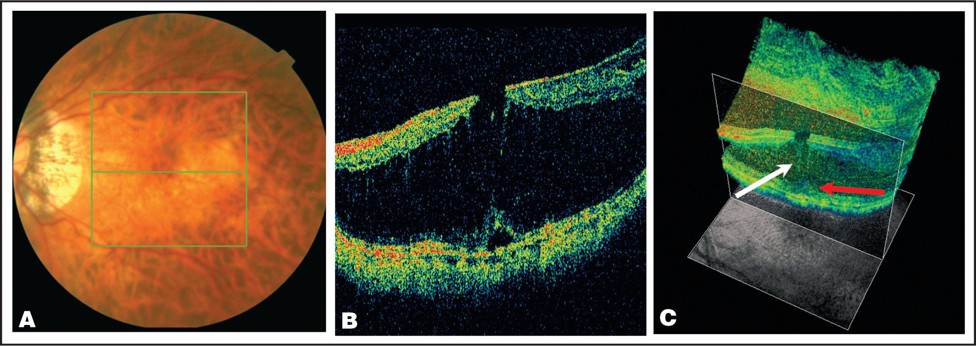 (A) Optical Coherence Tomography (OCT) Fundus Photograph of Case 3 Showing the Marked Myopic Tessellated Fundus. The Macula Looks Atrophic with Surrounding Neurosensory Elevation. (B) Two-Dimensional OCT Showing Macular Schisis. (C) The Reconstructed Three-Dimensional OCT Image Further Demonstrates the Lamellar Macular Hole. The White Arrow Points to Continued Attachment Between the Intraretinal Layers. The Red Arrow Points to the Elevation of the Posterior Layer of the Retina.